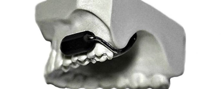 Stealth tooth microphone developed by US Military | Feature | Latest Technology News
